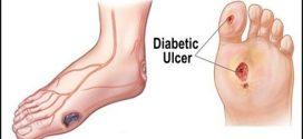 برای درمان زخمهای دیابتیها چه باید کرد؟